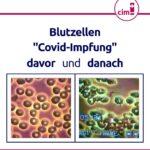 Anruf bei der Giftzentrale wegen COVID-Impfung